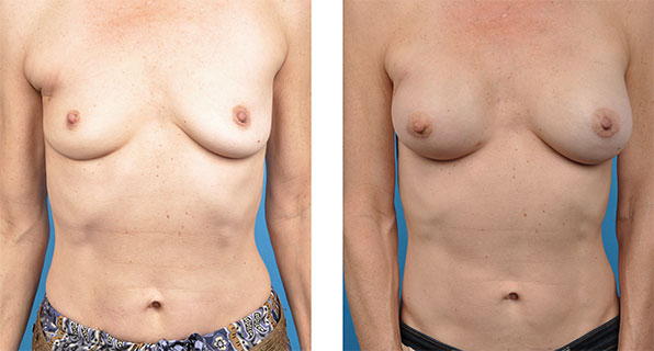 Breast Reconstruction Revision patient images
