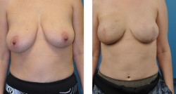 Breast reconstruction with tissue expanders before and after patient pictures