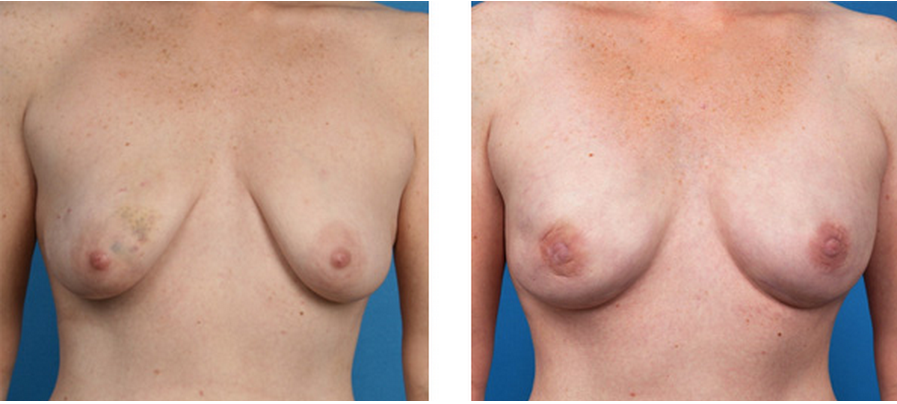 Bilateral nipple sparing mastectomy patient