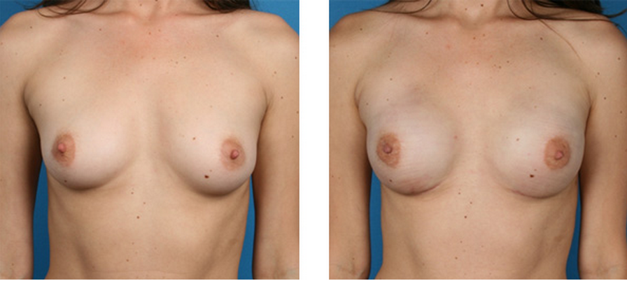 nipple-sparing mastectomy patient
