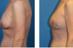 Bilateral_nipple-sparing_mastectomy_images