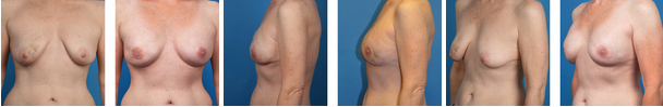 Bilateral nipple sparing mastectomy before and afters