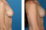 Bilateral_nipple-sparing_mastectomy_pictures
