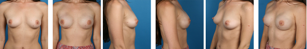 nipple-sparing mastectomy before and afters