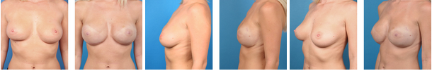 Bilateral nipple areola sparing mastectomy before and afters