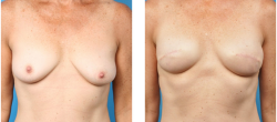 Bilateral skin sparing mastectomy patient