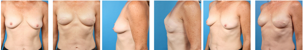 Bilateral skin sparing mastectomy before and afters