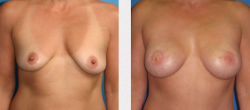 breast cancer reconstruction before and after