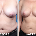 breast-conserving-surgery-before-and-after
