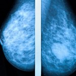 Mammogram image, two mammograpy images