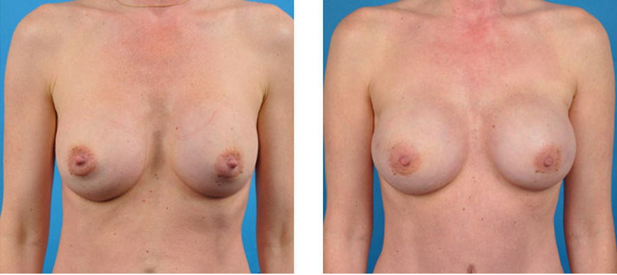 bilateral prophylactic mastectomy patient