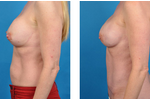 bilateral_prophylactic_mastectomy_pictures