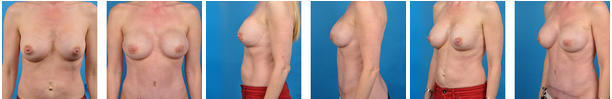 bilateral prophylactic mastectomy before and afters