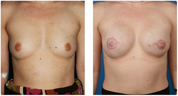 skin-sparing mastectomy, One-Stage Breast Reconstruction before and after pics
