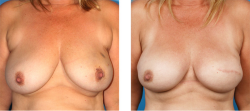 Nipple sparing mastectomy and skin sparing mastectomy patient