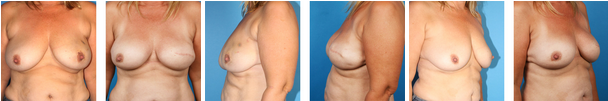 nipple & skin sparing mastectomy before & afters