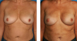 Bilateral nipple/areola-sparing mastectomy with Cassileth One-Stage Breast Reconstruction before and after