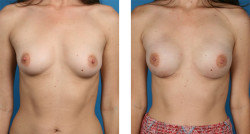 Bilateral nipple-sparing mastectomy, One-Stage Breast Reconstruction before and after