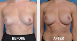 One-Stage Breast Reconstruction Before & After