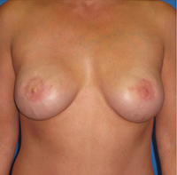 Breast Reconstruction Revision Gallery