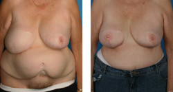 breast TRAM flap reconstruction, nipple/areola reconstruction before and after pictures