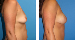 bilateral skin-sparing mastectomy, One-Stage Breast Reconstruction, nipple and areola reconstruction patient image