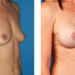nipple and areola sparing mastectomy and Left skin sparing mastectomy with Cassileth One-Stage Breast Reconstruction