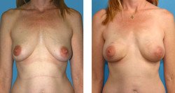 Bilateral nipple/areola-sparing mastectomy with One-Stage Breast Reconstruction before & after