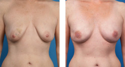 Bilateral nipple-sparing mastectomy, One-Stage Breast Reconstruction