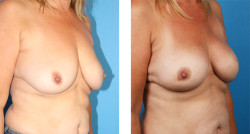nipple-sparing mastectomy, skin-sparing mastectomy. Bilateral One-Stage Breast Reconstruction before and after