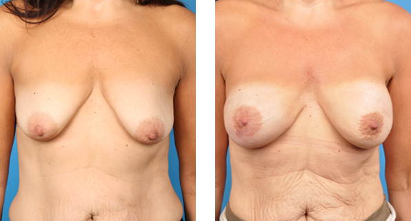 Bilateral nipple-sparing mastectomy with Cassileth One-Stage Breast Reconstruction patient photo