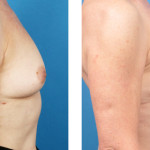 breast nipple/areola-sparing mastectomy with Cassileth One-Stage Breast Reconstruction before and after