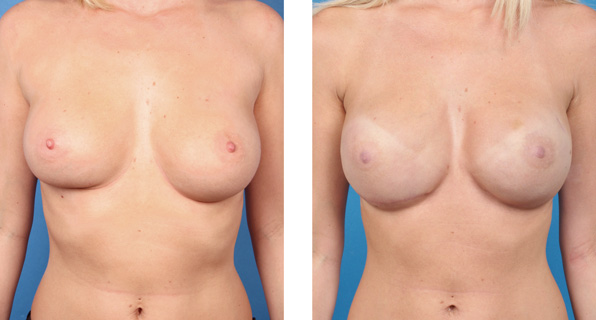 Bilateral nipple/areola-sparing mastectomy with Cassileth One-Stage Breast Reconstruction patient photo