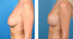 Bilateral nipple/areola-sparing mastectomy with Cassileth One-Stage Breast Reconstruction