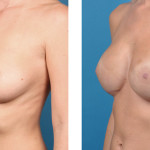 Bilateral nipple/areola-sparing mastectomy with Cassileth One-Stage Breast Reconstruction patient image
