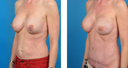 BRCA + bilateral prophylactic mastectomies with One-Stage Breast Reconstruction patient images