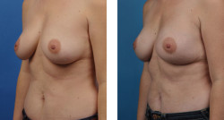 BRCA + prophylactic bilateral mastectomies with one-stage breast reconstruction patient before and after