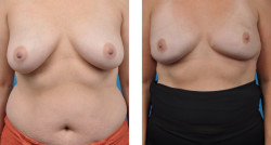 bilateral mastectomy with Cassileth One-Stage Breast Reconstruction
