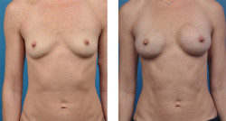 bilateral mastectomy with One-Stage Breast Reconstruction patient