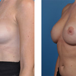 bilateral mastectomy and One-Stage Breast Reconstruction patient images