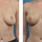 bilateral mastectomy and One-Stage Breast Reconstruction Patient photos