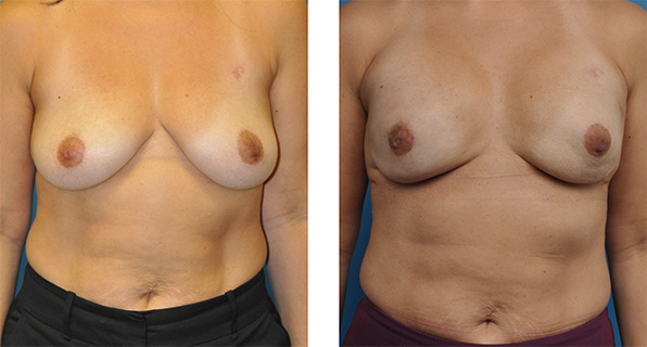 prophylactic mastectomy with One-Stage Breast Reconstruction patient photo