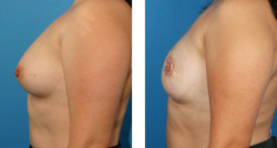 Bilateral skin-sparing mastectomy, One-Stage Breast Reconstruction, Bilateral nipple and areola reconstruction