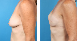 Bilateral skin-sparing mastectomy, One-Stage Breast Reconstruction