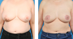 Bilateral mastectomy, one-stage breast reconstruction. Nipple-areolar reconstruction and fat grafting
