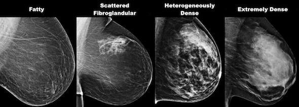 screening mammogram beverly hills breast density comparison