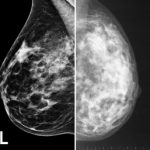 difference between digital mammograms and conventional mammograms beverly hills