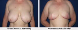 Goldilocks Mastectomy Los Angeles