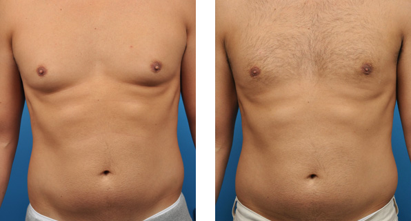 los angeles gynecomastia surgery before and after front view