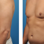 Before & After Gynecomastia Surgery in Los Angeles